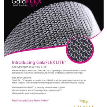 20-GASU-079--GalaFLEX-LITE-Sell-Sheet-FA2_OL_NoBleed-1024x659